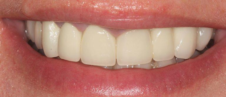 dental smile makeover in east london