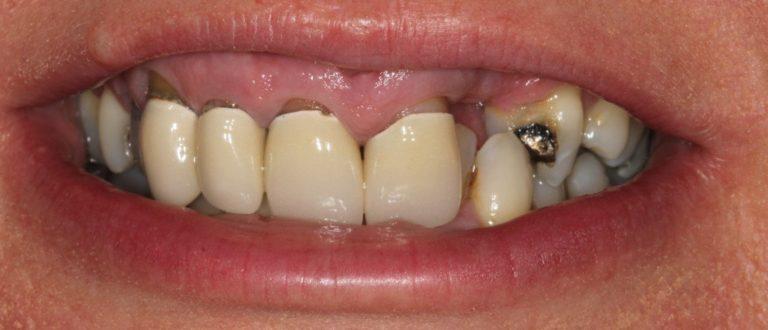 dalston dentist smile makeover