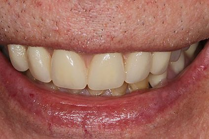 John after smile makeover at Dental Beauty Dalston in east london