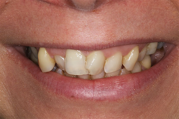 teeth straightening in dalston