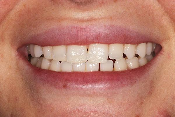 dental bonding results