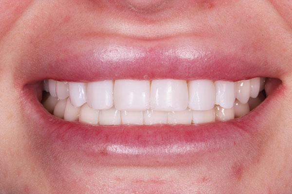 dental bonding reviews